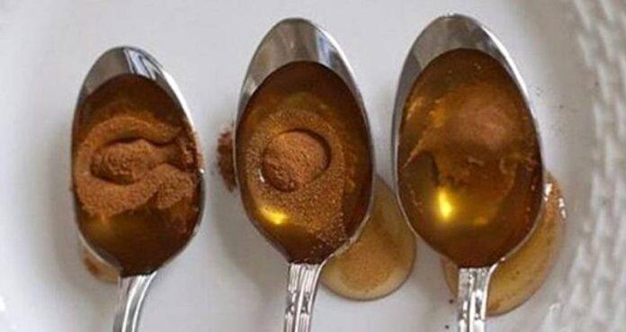 Mierea cu scorțișoară – Alimentul perfect pentru a trata nenumărate boli și afecțiuni